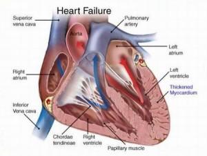 congestive-failure-heart-300x226